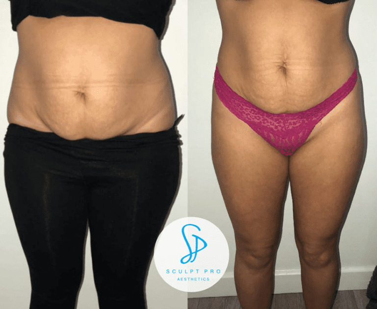 Fat freeze Results
